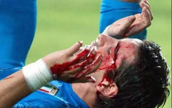那年,意大利队见识到了什么叫做韩式少林足球